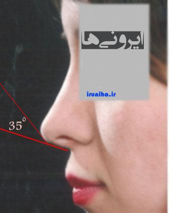 زاویه بندی بینی
