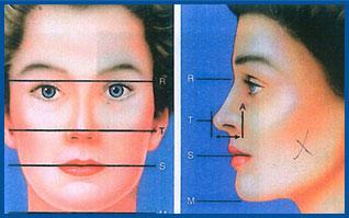 اثر طول بینی بر زیبایی بینی